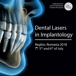 Dental Laser in Implantology