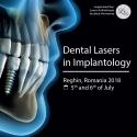 Dental Lasers in Implantology