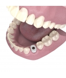 Emergence and cervical profile of the peri-implant soft tissues