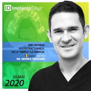 """Implantarea postextracțională. De la """"simplu"""" la complex."""